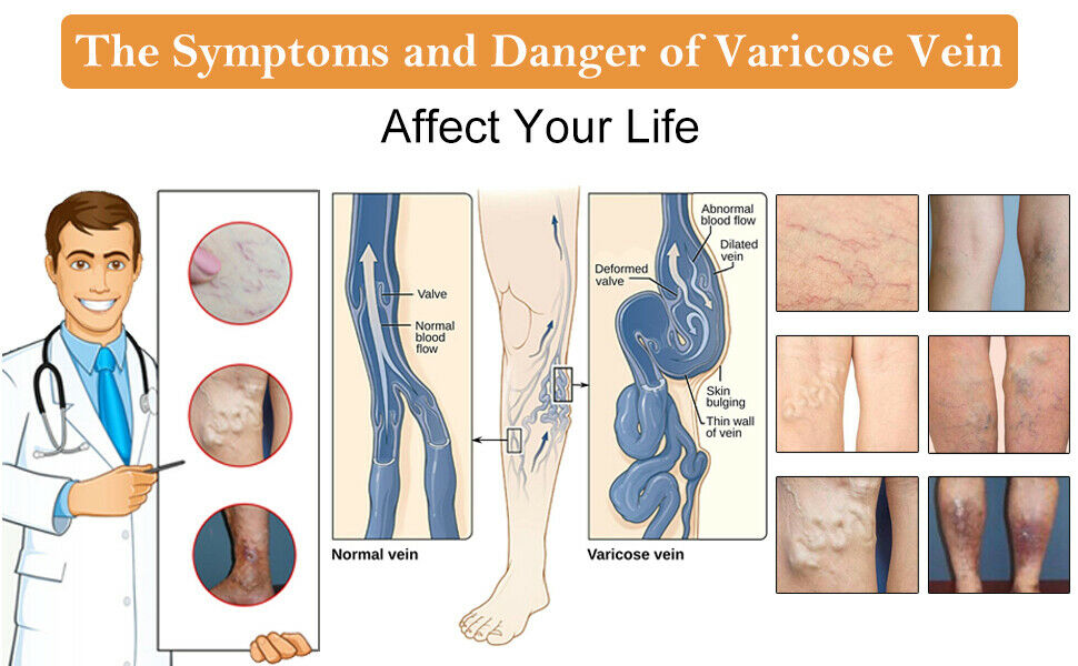 the dangers of varicose vein